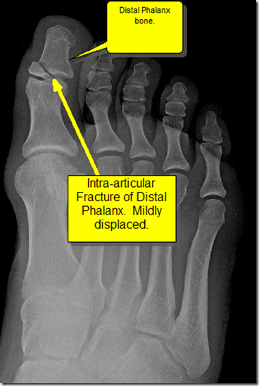 image thumb7 Foot Trauma, fracture of the interphalangeal joint of the great toe:
