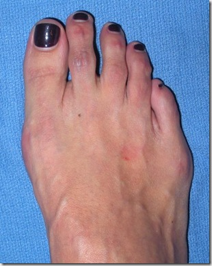 Capture 201 thumb Bunion Surgery Including before and after pictures of bunion surgery.