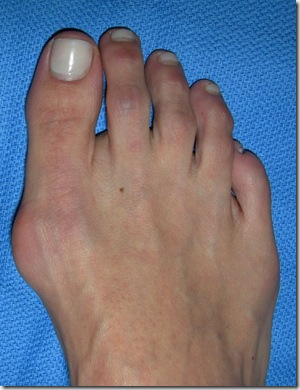 Capture 202 thumb Bunion Surgery Including before and after pictures of bunion surgery.