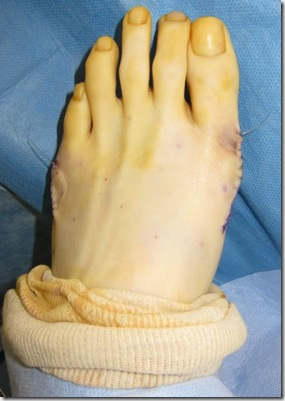 Capture 206 thumb Bunion Surgery Including before and after pictures of bunion surgery.