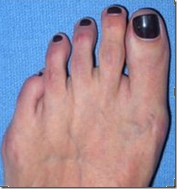 Capture 213 thumb Bunion Surgery Including before and after pictures of bunion surgery.