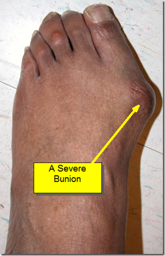 Bunion Surgery Before and Afer