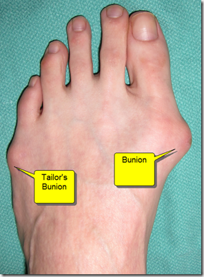 image thumb4 Bunion Surgery Including before and after pictures of bunion surgery.