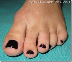 "British Hammertoes are wonky toes 2 thumb Part II: British Hammertoes are ""Wonky Toes""! Before and After Pictures of Hammertoe Surgery"