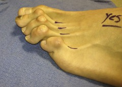 Best Hammertoe surgery Before and After Pictures 02 thumb The best hammertoe surgeon! (Including before and after pictures of hammertoe surgery)