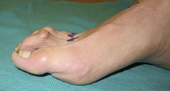 Best Hammertoe surgery Before and After Pictures 05 thumb The best hammertoe surgeon! (Including before and after pictures of hammertoe surgery)