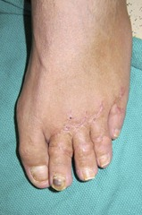 Best Hammertoe surgery Before and After Pictures 09