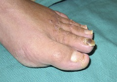 Best Hammertoe surgery Before and After Pictures 10