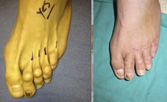 Best Hammertoe surgery Before and After Pictures 13