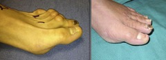 Best Hammertoe surgery Before and After Pictures 14