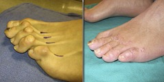 Best Hammertoe surgery Before and After Pictures 15 thumb The best hammertoe surgeon! (Including before and after pictures of hammertoe surgery)