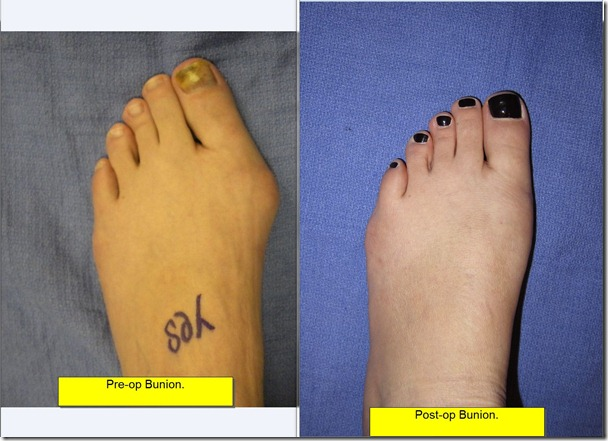 Post op pciture of painful bunion 7