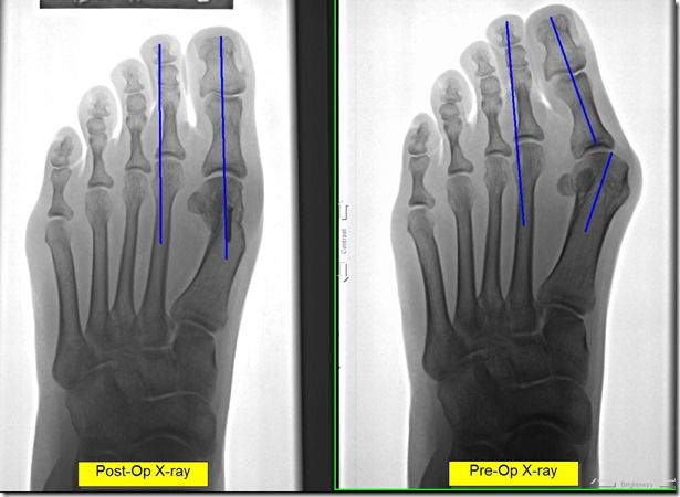 Post op x-ray of painful bunion 9