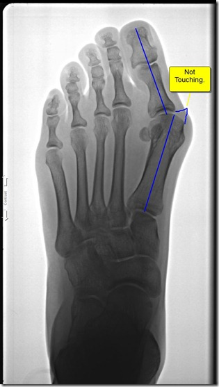 Pre operative x-ray of painful bunion 3