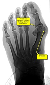 Best Podiatrist Bunion Surgery without pain joint space narrowing1 thumb When to have bunion surgery when you are not in pain.