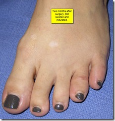 "Hammertoe Surgery Before and After Pictures 03 thumb Part II: British Hammertoes are ""Wonky Toes""! Before and After Pictures of Hammertoe Surgery"