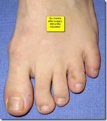 "Hammertoe Surgery Before and After Pictures 04 thumb Part II: British Hammertoes are ""Wonky Toes""! Before and After Pictures of Hammertoe Surgery"