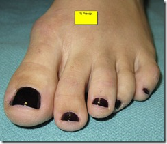 "Hammertoe Surgery Before and After Pictures 05 thumb Part II: British Hammertoes are ""Wonky Toes""! Before and After Pictures of Hammertoe Surgery"