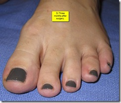 "Hammertoe Surgery Before and After Pictures 07 thumb Part II: British Hammertoes are ""Wonky Toes""! Before and After Pictures of Hammertoe Surgery"