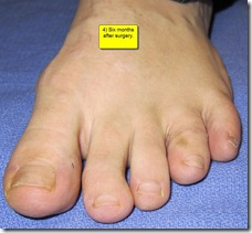 "Hammertoe Surgery Before and After Pictures 08 thumb Part II: British Hammertoes are ""Wonky Toes""! Before and After Pictures of Hammertoe Surgery"
