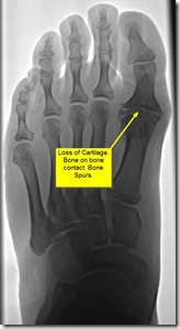 Pain in great toe joint Hallux Limitus p03 thumb1 Pain in the big toe joint. Hallux Limitus Surgery including before and after pictures. Arthritis of big toe joint.