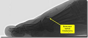 Pain in great toe joint Hallux Limitus p04 thumb1 Pain in the big toe joint. Hallux Limitus Surgery including before and after pictures. Arthritis of big toe joint.