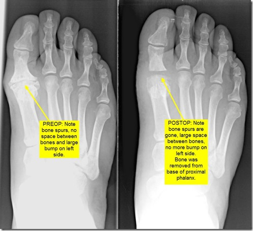 Pain in great toe joint Hallux Limitus p07 thumb1 Pain in the big toe joint. Hallux Limitus Surgery including before and after pictures. Arthritis of big toe joint.