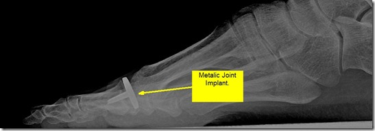 Pain in great toe joint Hallux Limitus p08 thumb1 Pain in the big toe joint. Hallux Limitus Surgery including before and after pictures. Arthritis of big toe joint.