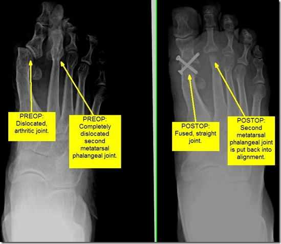 Pain in great toe joint Hallux Limitus p09 thumb1 Pain in the big toe joint. Hallux Limitus Surgery including before and after pictures. Arthritis of big toe joint.