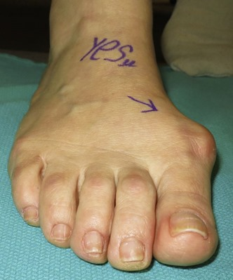 Large bunion surgery before and after pictures p02