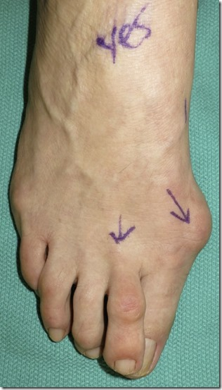 Large bunion with overlapping second toe before and after pictures p08 Case Study: A large bunion with overlapping second toe