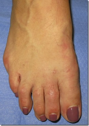 Large bunion with overlapping second toe before and after pictures p09 Case Study: A large bunion with overlapping second toe