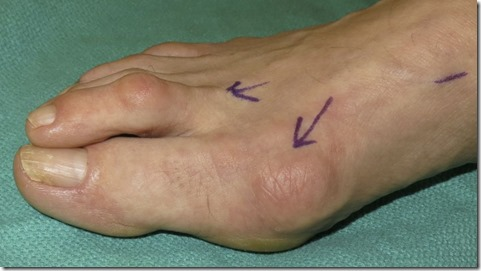Large bunion with overlapping second toe before and after pictures p10 Case Study: A large bunion with overlapping second toe