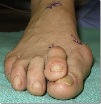 Large bunion with overlapping second toe before and after pictures p12 Case Study: A large bunion with overlapping second toe
