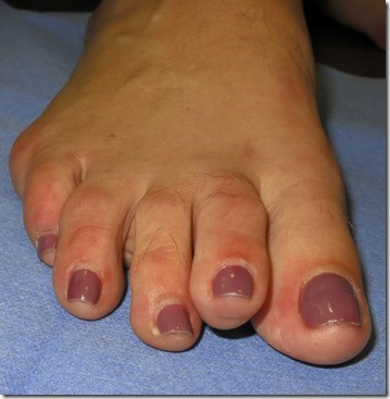 Large bunion with overlapping second toe before and after pictures p13 Case Study: A large bunion with overlapping second toe