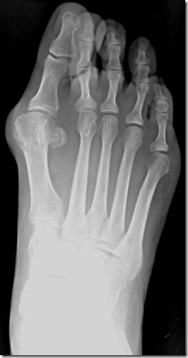 Large bunion with overlapping second toe before and after pictures p14 Case Study: A large bunion with overlapping second toe