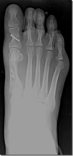 Large bunion with overlapping second toe before and after pictures p15 Case Study: A large bunion with overlapping second toe