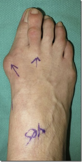 Large bunion with overlapping second toe p01