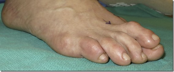 Large bunion with overlapping second toe p03
