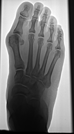 image Bunion Surgery Done the Right Way
