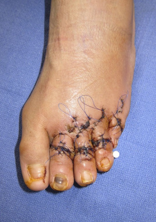 Best Hammertoe Surgeon In Nyc Before And After Pictures