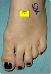 Hammertoe Surgery Before and After Pictures 01