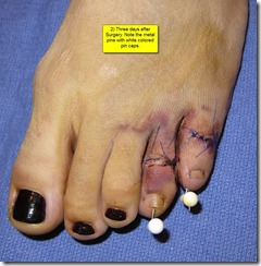 Hammertoe Surgery Before and After Pictures 02