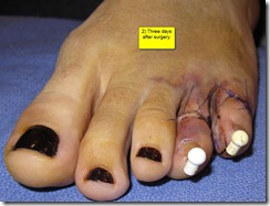 Hammertoe Surgery Before and After Pictures 06