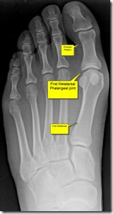 Pain in great toe joint Hallux Limitus p01