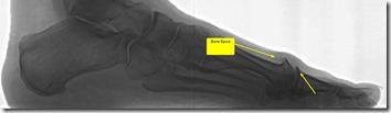 Pain in great toe joint Hallux Limitus p02