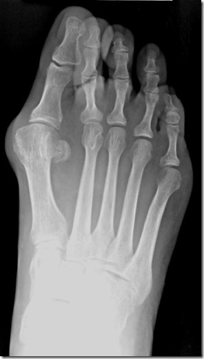 Large bunion with overlapping second toe p02