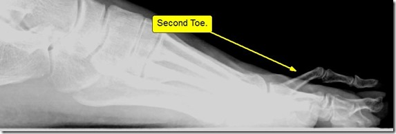 Large bunion with overlapping second toe p04