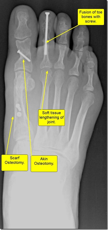 Large bunion with overlapping second toe p06